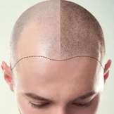 Best hair loss Treatment in Guntur