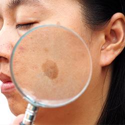 Melasma Laser Treatment in Guntur