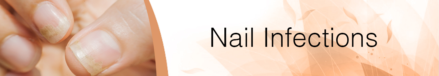Best Skin Clinic for Nail Treatments in Guntur