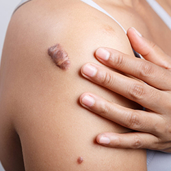 Warts and Moles Laser Removal Treatment