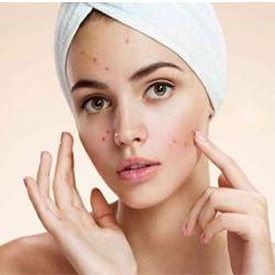 Acne Treatment In Guntur