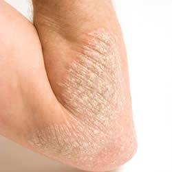 Best Treatment For Eczema in Guntur