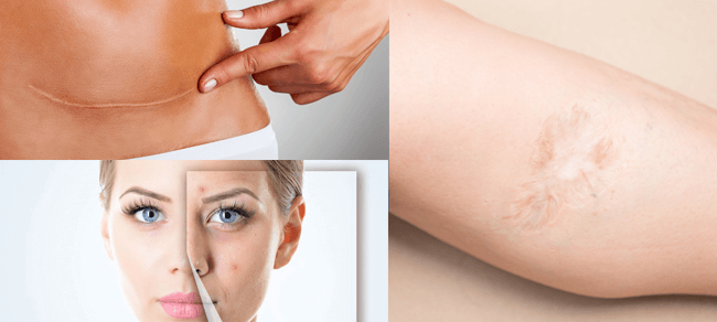 Skin Scar Reduction Treatment