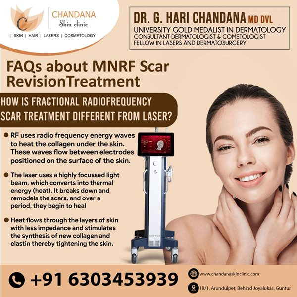 Best Skin Clinic in Guntur